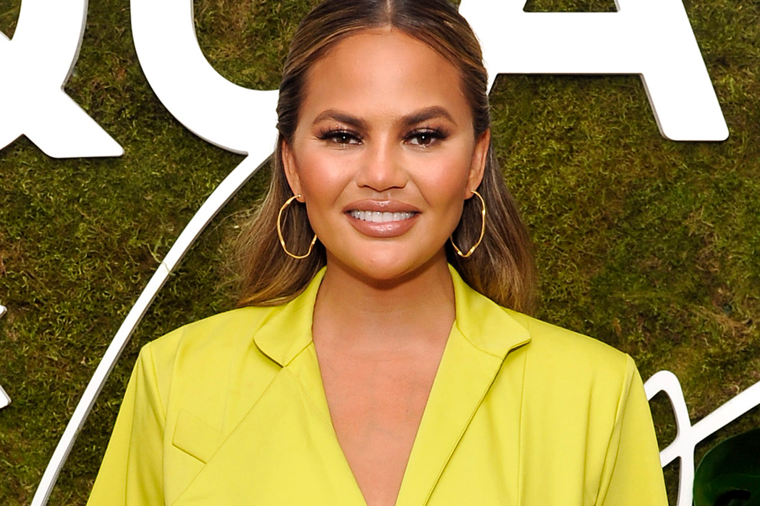 Chrissy Teigen Just Shared Graphic Photos Of Her Breast Implant Removal